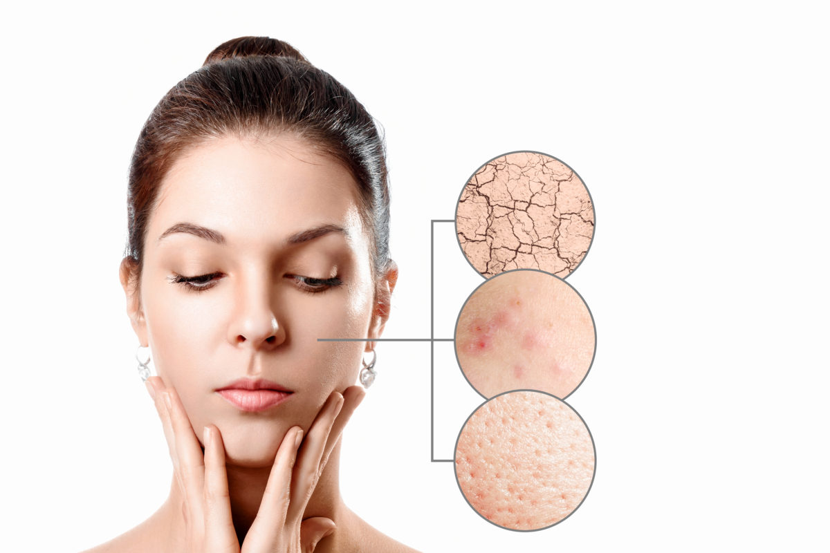 Acne and skin treatment plan
